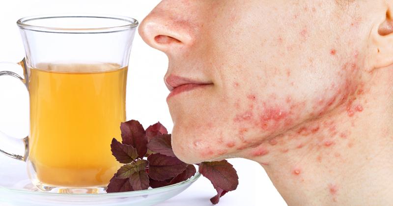 tea acne anxiety FI