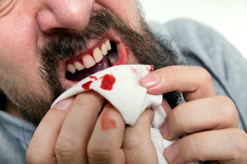 bleeding gums nutrient deficiency