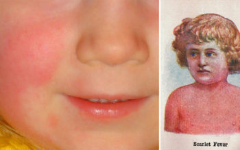 9 Common Symptoms Of Scarlet Fever Every Parent Should Watch Out For