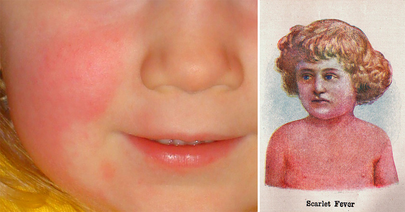 9 common symptoms of scarlet fever every parent should watch out, Human Body