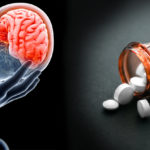 antidepressants brain FI