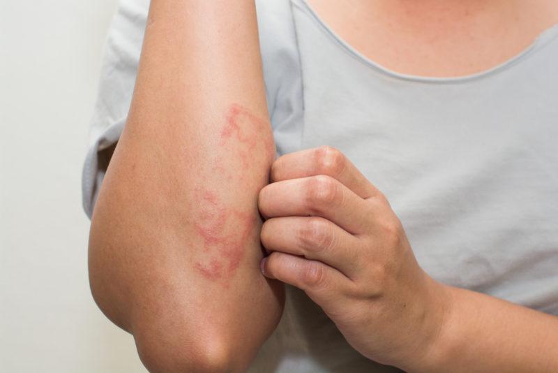 Les lésions cutanées à bras leczéma le traitement