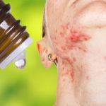 essential oil hormones FI