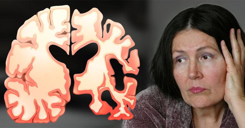 marijuana alzheimers FI