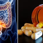 medication colon cancer FI