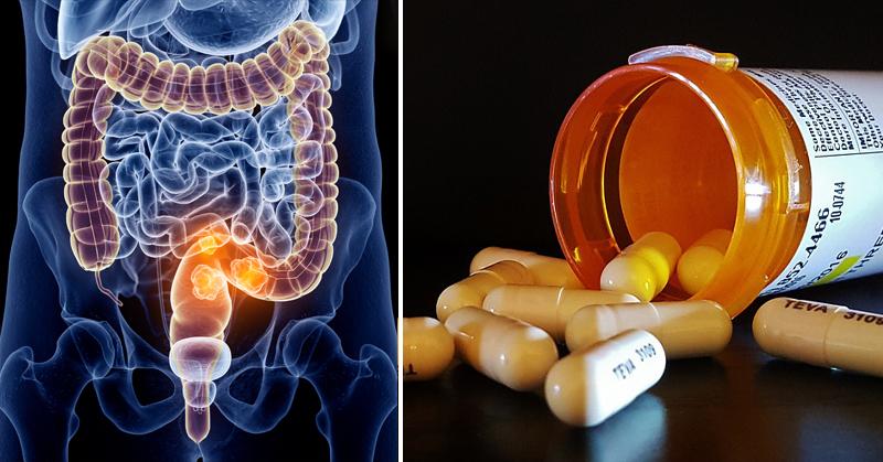 medication colon cancer FI
