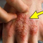root causes eczema FI