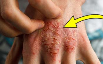 8 Root Causes Of Eczema Doctors Never Treat