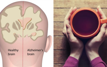 Drink This To Reduce Your Alzheimer's Risk By 86%