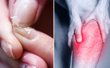 7 Signs Of Calcium Deficiency You Should Never Ignore!