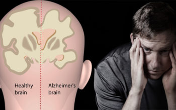 4 Herbs That Treat Alzheimer's Disease, Dementia & Depression