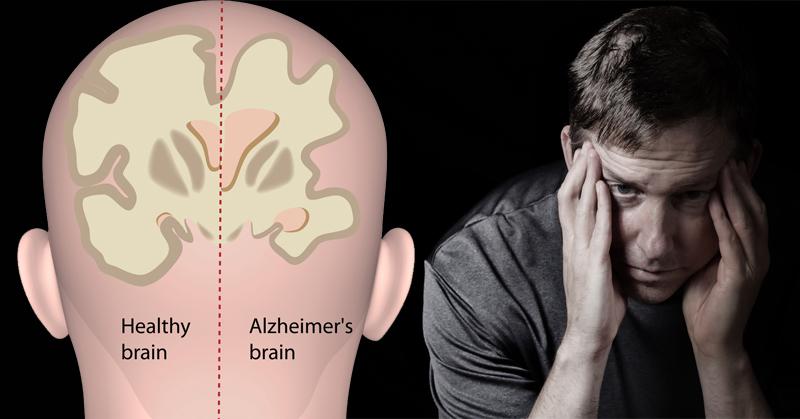 herbs Alzheimer's Disease FI
