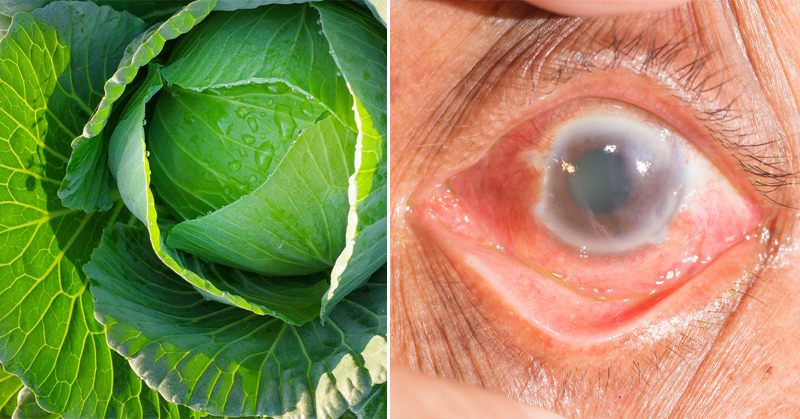 plants glaucoma FI