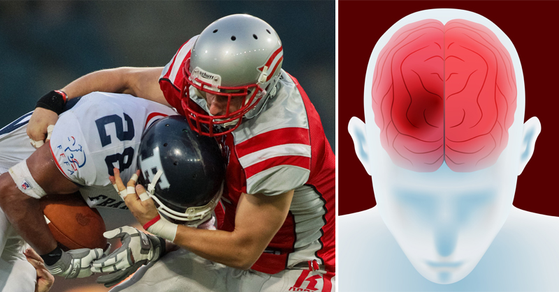 football brain FI