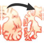 pasta brain FI