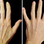 tips hands FI