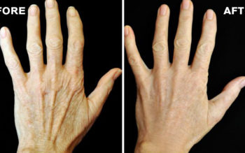 5 Tips That Will Make Your Hands Look 10 Years Younger