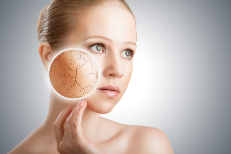 dry skin diet changes perfect complexion