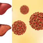 meat hepatitis FI