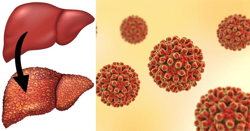 Resultado de imagen para imagenes de hepatitis e