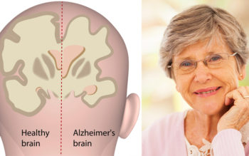 New Study Links Common Vision Problem To Alzheimer's Disease