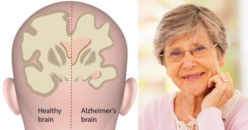 eye alzheimers FI