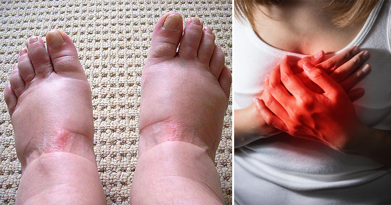 feet swelling FI