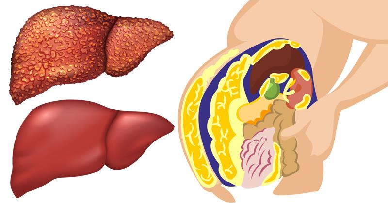 food liver detox FI