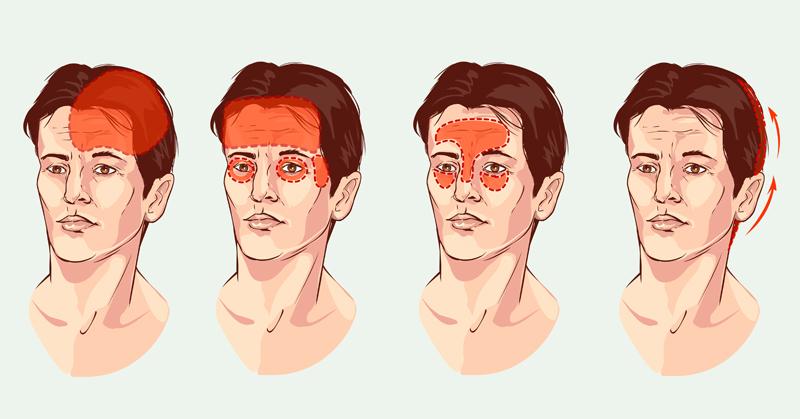 headache accupressure FI