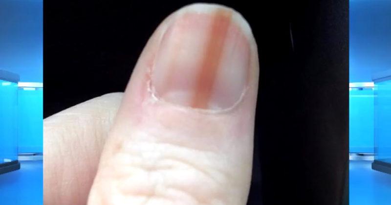 melonoma nail FI