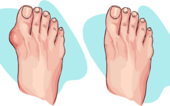 4 Simple Ways To Stop Bunions Fast!