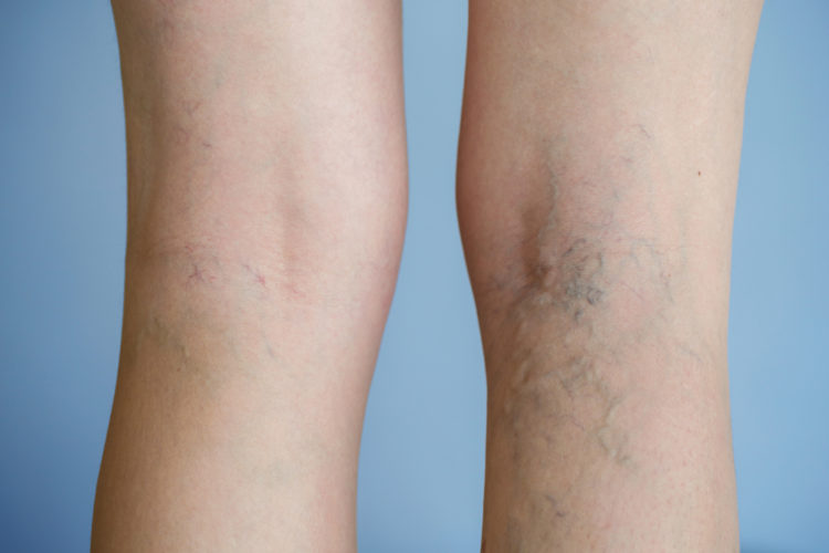 cypress oil for spider veins