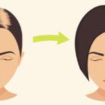 Alopecia Areata FI