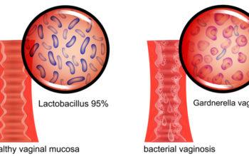 Bacterial Vaginosis: Symptoms & 6 Natural Remedies