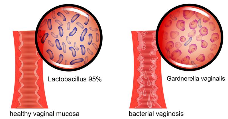 Bacterial Vaginosis FI