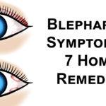 Blepharitis FI