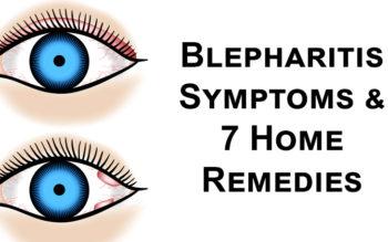 Blepharitis Symptoms & 7 Home Remedies