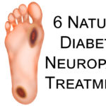 Diabetic Neuropathy FI