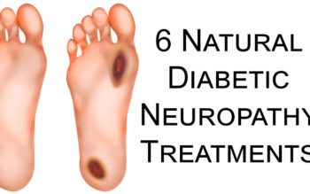 6 Natural Diabetic Neuropathy Treatments