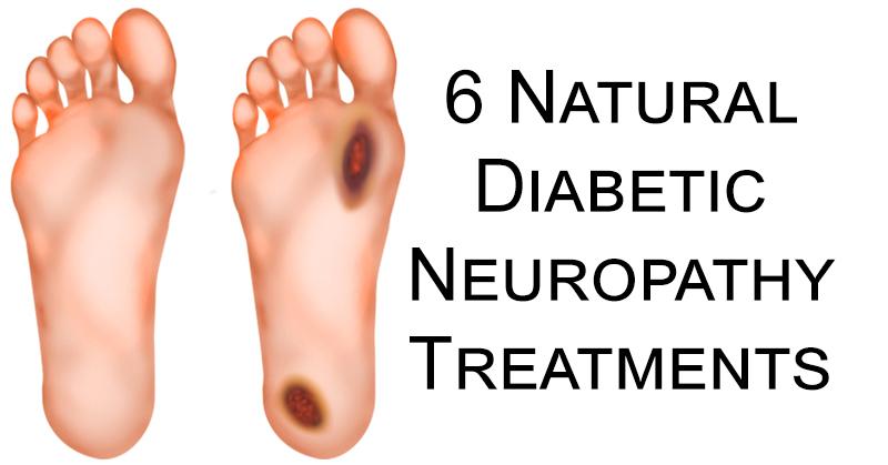 Diabetic Neuropathy FI