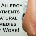 allergy treatments FI