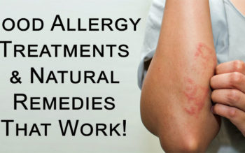 Food Allergy Treatments & Natural Remedies That Work!