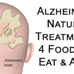 alzheimer treat FI
