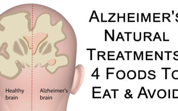 Alzheimer's Natural Treatments: 4 Foods To Eat & Avoid + Supplements