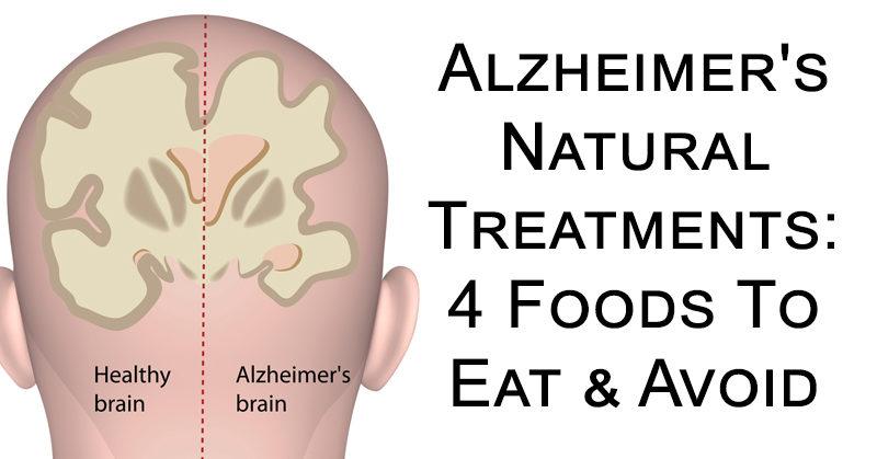 Pds alzheimers