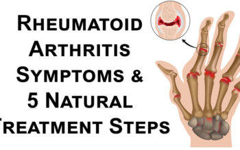Rheumatoid Arthritis Symptoms & 5 Natural Treatment Steps