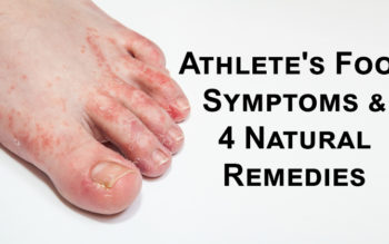 Athlete's Foot Symptoms & 4 Natural Remedies