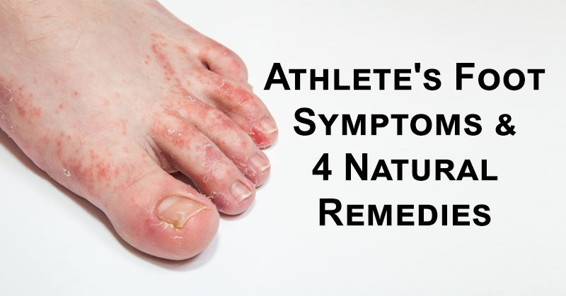 athletes foot symptoms amp 4 natural remedies davidwolfecom
