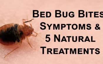 Bed Bug Bites: Symptoms & 5 Natural Treatments