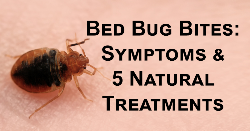 Bed Bug Bites Symptoms 5 Natural Treatments David